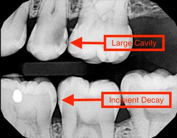 What Is A Dental Cavity?